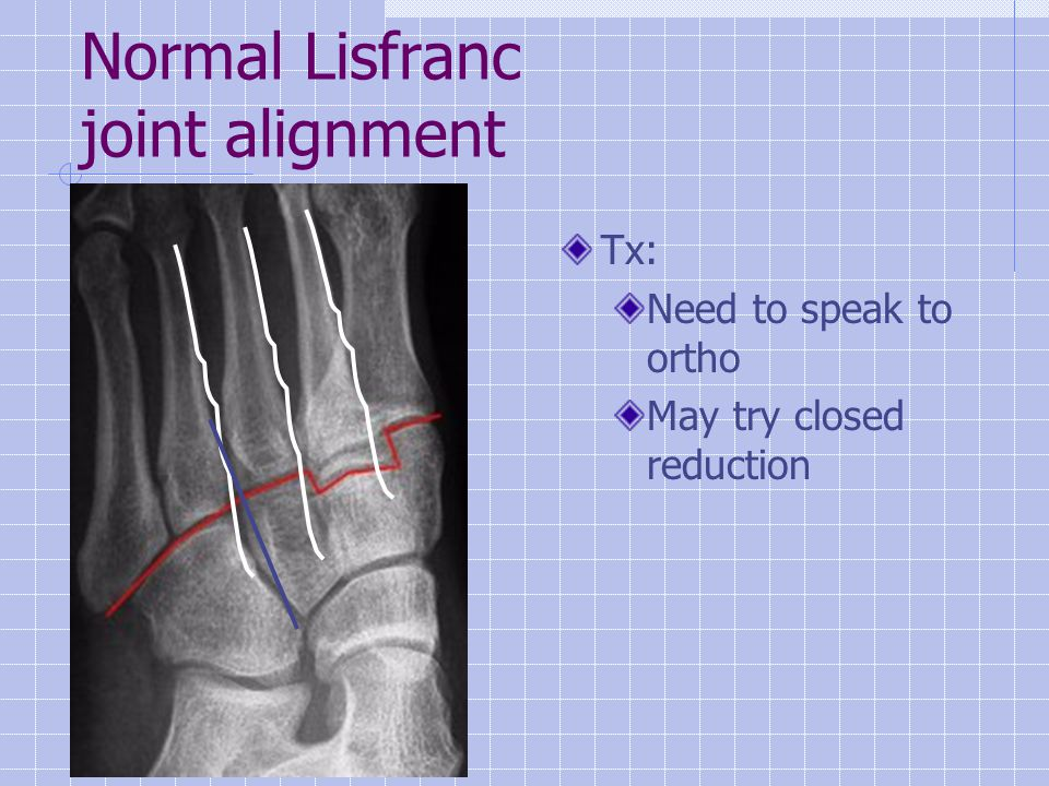 Normal Lisfranc joint alignment Tx: Need to speak to ortho May try closed reduction