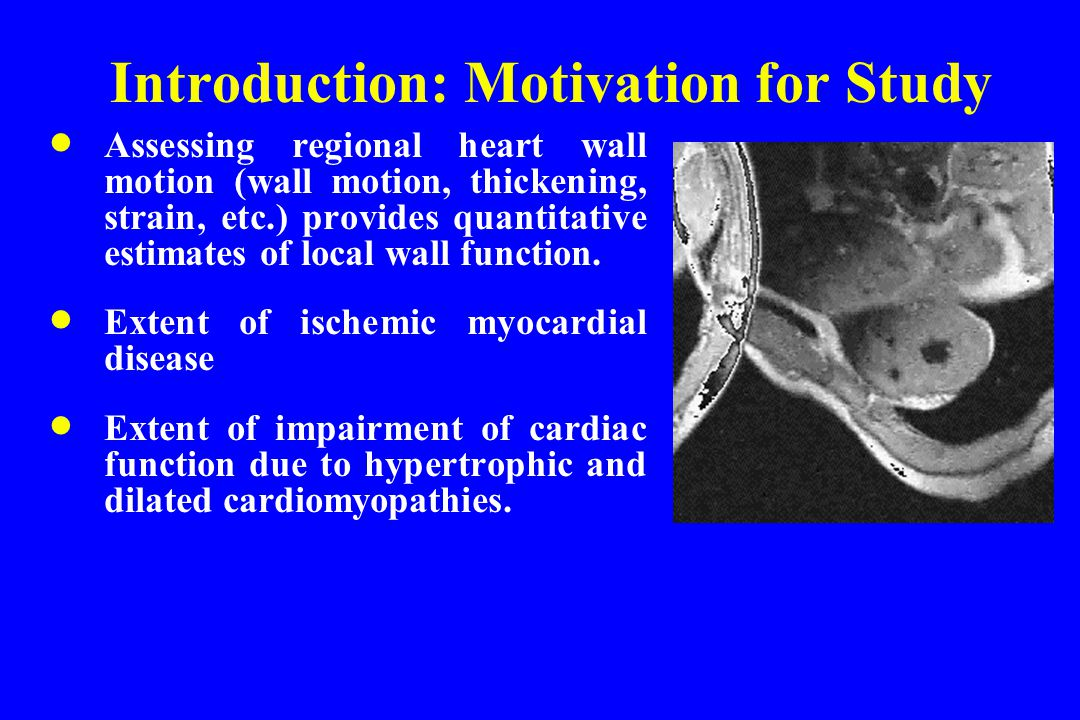 Introduction: Motivation for Study  Assessing regional heart wall motion (wall motion, thickening, strain, etc.) provides quantitative estimates of local wall function.