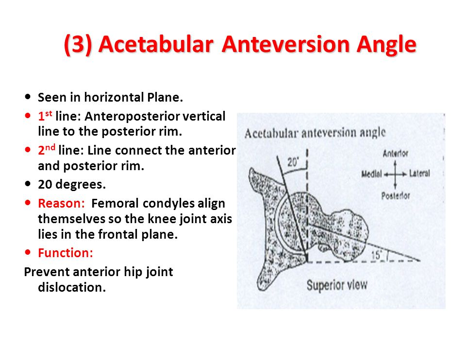 (3) Acetabular Anteversion Angle Seen in horizontal Plane. 1 st line: Anteroposterior vertical line to the posterior rim. 2 nd line: Line connect the