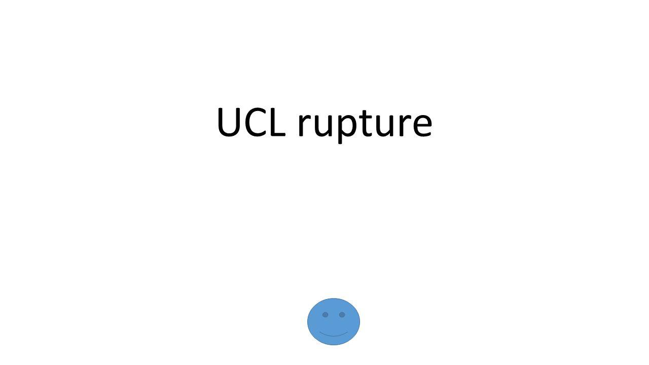 UCL rupture