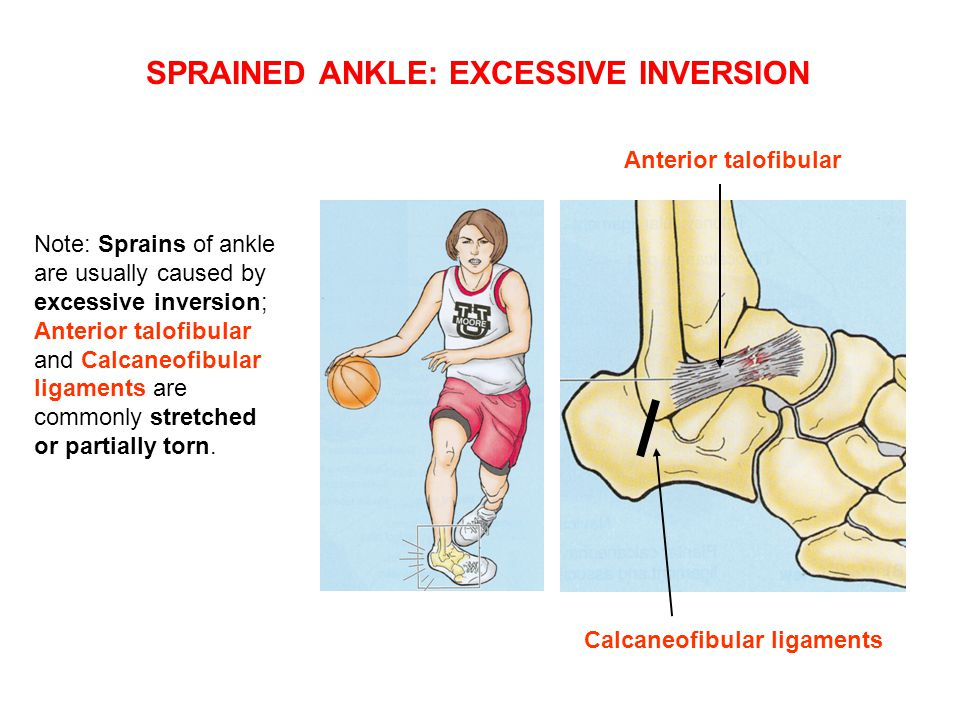Note: Sprains of ankle are usually caused by excessive inversion; Anterior talofibular and Calcaneofibular ligaments are commonly stretched or partially torn.