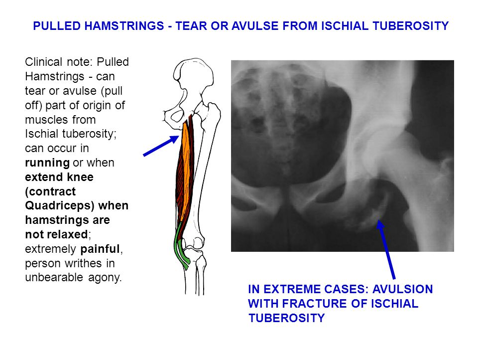Clinical note: Pulled Hamstrings - can tear or avulse (pull off) part of origin of muscles from Ischial tuberosity; can occur in running or when extend knee (contract Quadriceps) when hamstrings are not relaxed; extremely painful, person writhes in unbearable agony.
