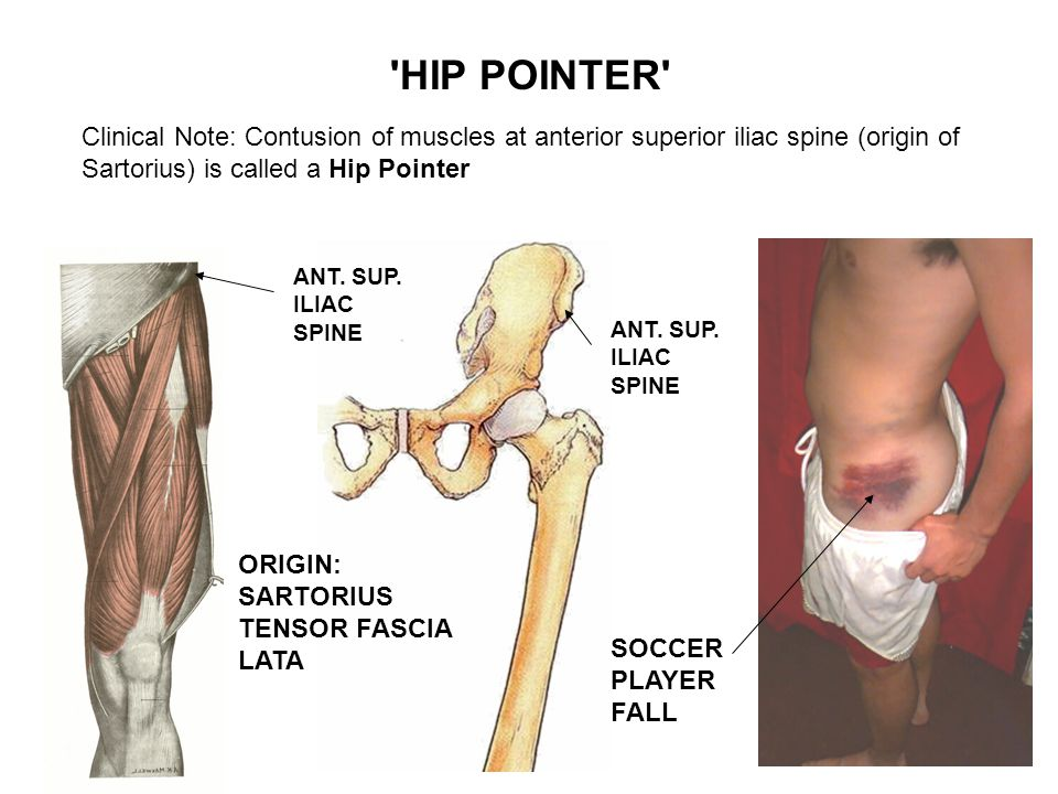 Clinical Note: Contusion of muscles at anterior superior iliac spine (origin of Sartorius) is called a Hip Pointer HIP POINTER ANT.