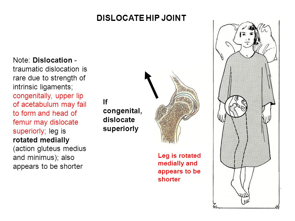 Note: Dislocation - traumatic dislocation is rare due to strength of intrinsic ligaments; congenitally, upper lip of acetabulum may fail to form and head of femur may dislocate superiorly; leg is rotated medially (action gluteus medius and minimus); also appears to be shorter Leg is rotated medially and appears to be shorter If congenital, dislocate superiorly DISLOCATE HIP JOINT