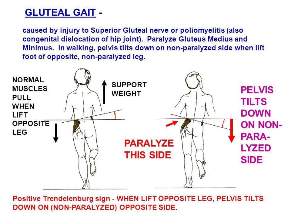 GLUTEAL GAIT - Positive Trendelenburg sign - WHEN LIFT OPPOSITE LEG, PELVIS TILTS DOWN ON (NON-PARALYZED) OPPOSITE SIDE.