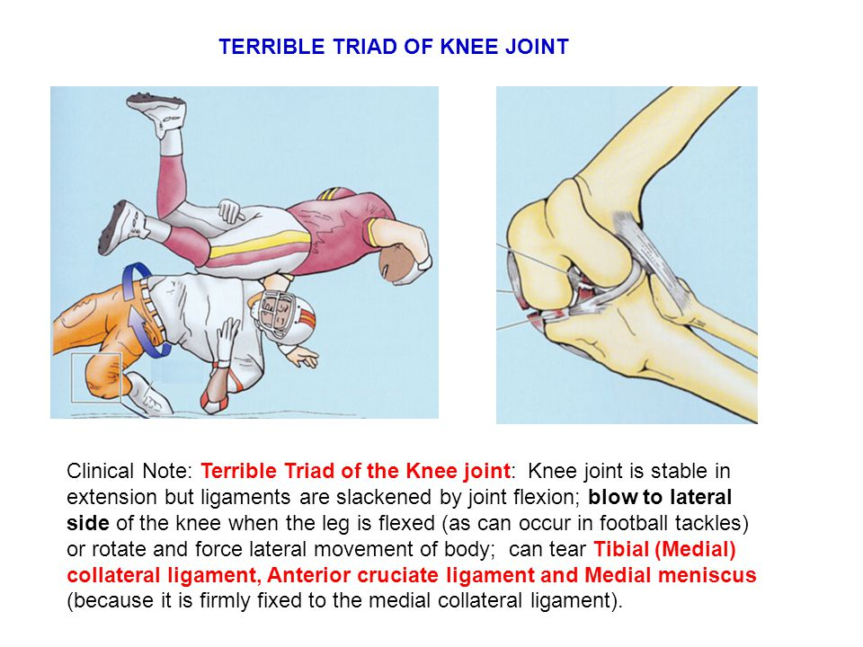 Clinical Note: Terrible Triad of the Knee joint: Knee joint is stable in extension but ligaments are slackened by joint flexion; blow to lateral side of the knee when the leg is flexed (as can occur in football tackles) or rotate and force lateral movement of body; can tear Tibial (Medial) collateral ligament, Anterior cruciate ligament and Medial meniscus (because it is firmly fixed to the medial collateral ligament).