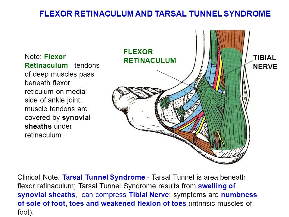 Note: Flexor Retinaculum - tendons of deep muscles pass beneath flexor reticulum on medial side of ankle joint; muscle tendons are covered by synovial sheaths under retinaculum Clinical Note: Tarsal Tunnel Syndrome - Tarsal Tunnel is area beneath flexor retinaculum; Tarsal Tunnel Syndrome results from swelling of synovial sheaths, can compress Tibial Nerve; symptoms are numbness of sole of foot, toes and weakened flexion of toes (intrinsic muscles of foot).