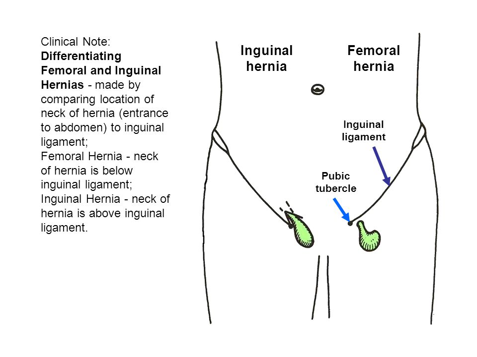 Clinical Note: Differentiating Femoral and Inguinal Hernias - made by comparing location of neck of hernia (entrance to abdomen) to inguinal ligament; Femoral Hernia - neck of hernia is below inguinal ligament; Inguinal Hernia - neck of hernia is above inguinal ligament.