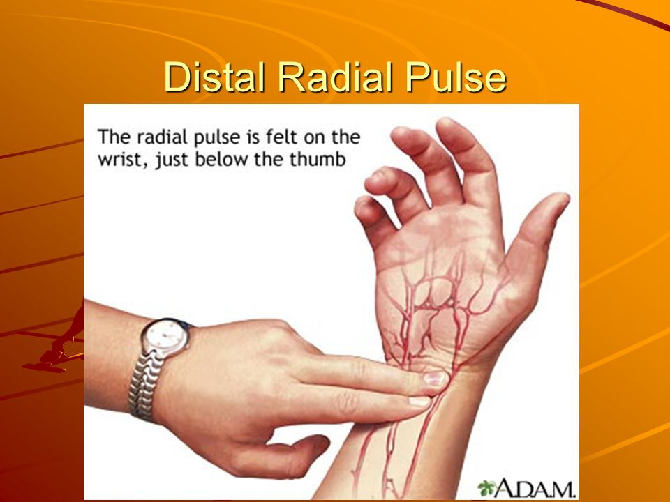 Distal Radial Pulse