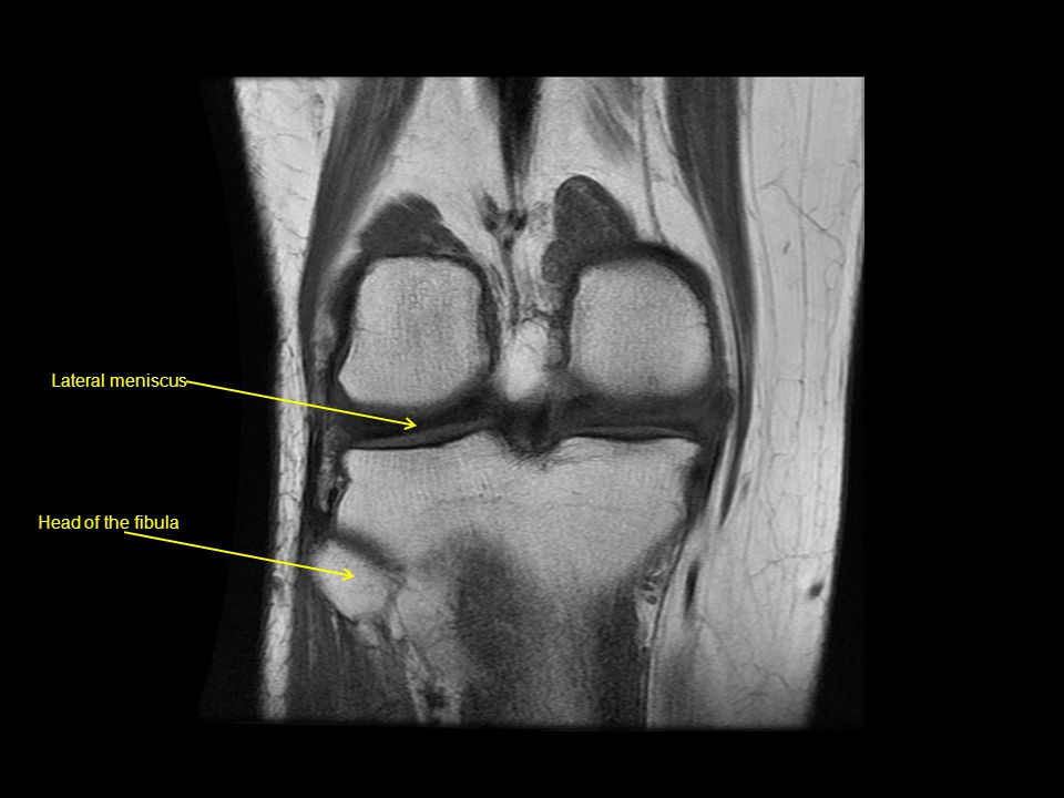 Lateral meniscus Head of the fibula