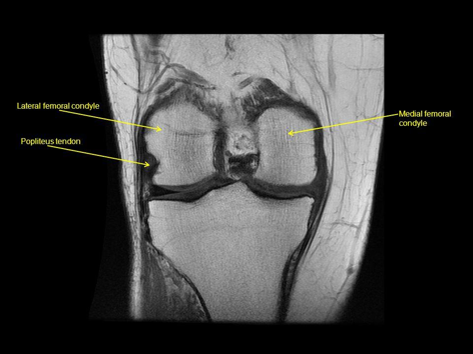 Lateral intermuscular septum Anterior cruciate ligament Lateral meniscus Lateral intercondylar tubercle Medial intercondylar tubercle Posterior cruciate ligament
