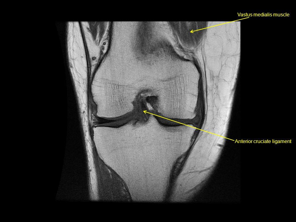 Vastus medialis muscle Anterior cruciate ligament