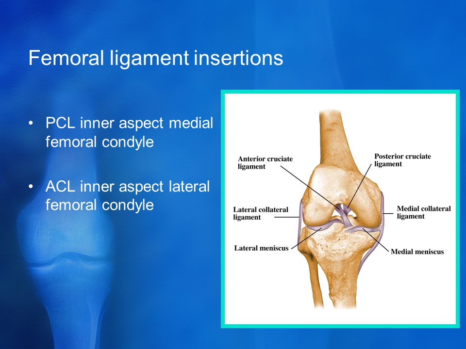 Femoral ligament insertions PCL inner aspect medial femoral condyle ACL inner aspect lateral femoral condyle