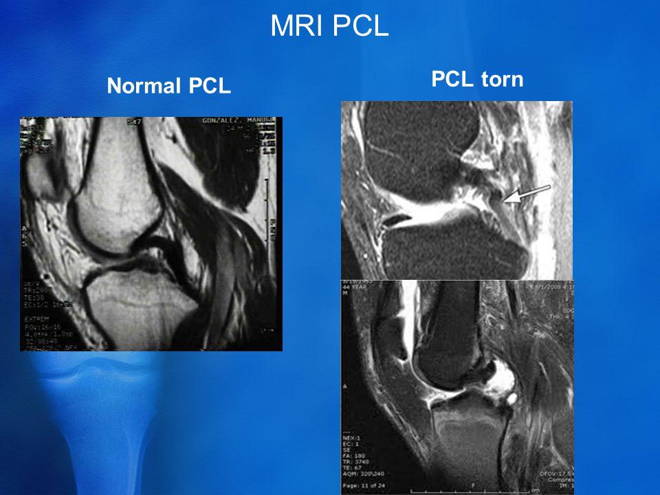 MRI PCL Normal PCL PCL torn