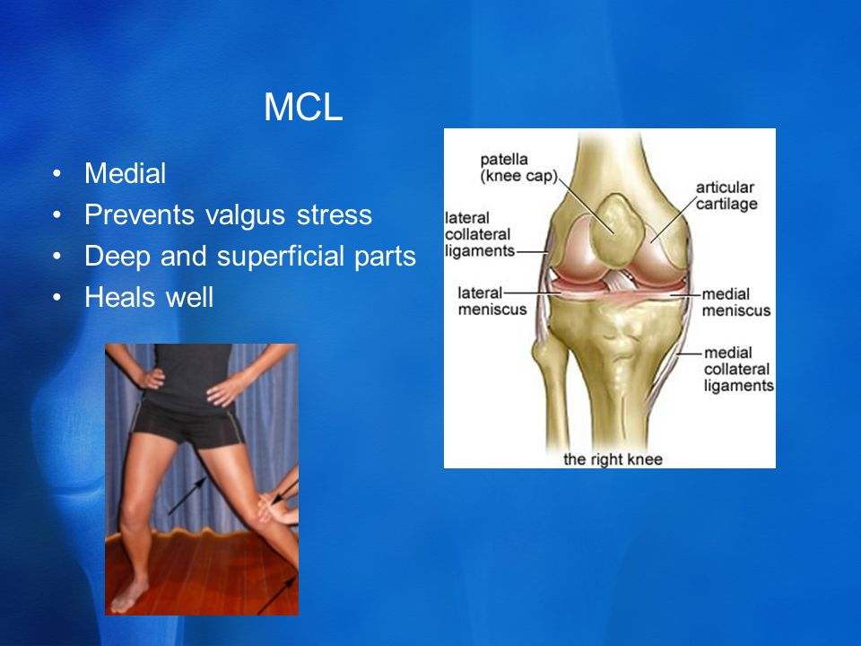 MCL Medial Prevents valgus stress Deep and superficial parts Heals well