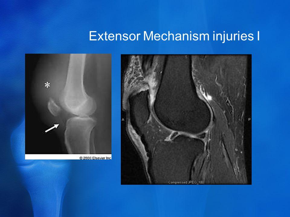 Extensor Mechanism injuries I