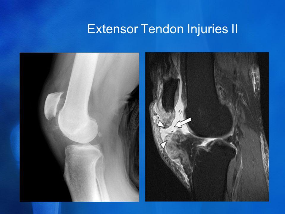 Extensor Tendon Injuries II
