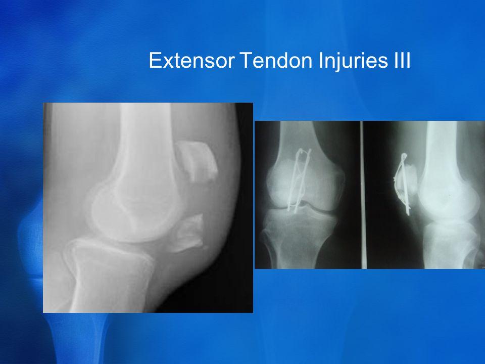 Extensor Tendon Injuries III