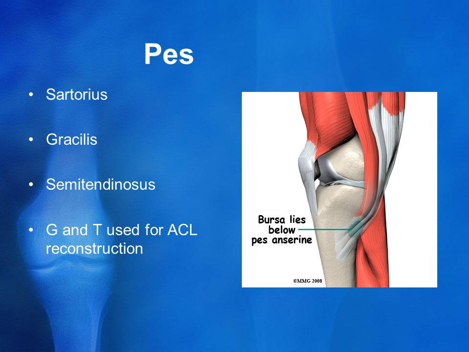 Pes Sartorius Gracilis Semitendinosus G and T used for ACL reconstruction