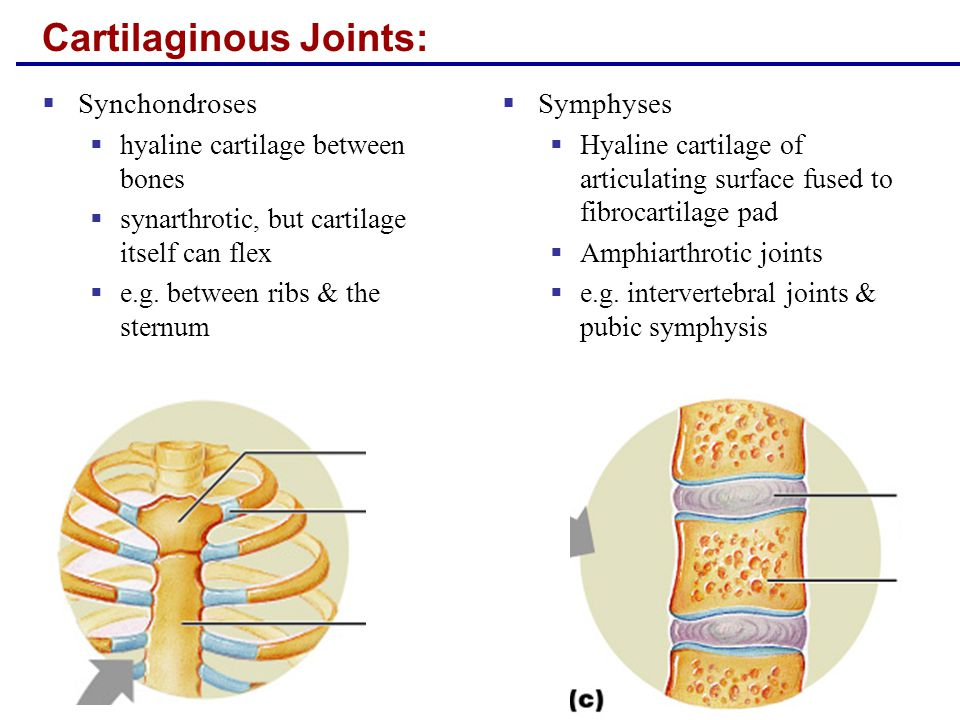 Synovial Joints  Articular cartilage forming the articular capsule  Synovial cavity filled with synovial fluid  Surrounded by reinforcing ligaments  Diarthrotic  all limb joints