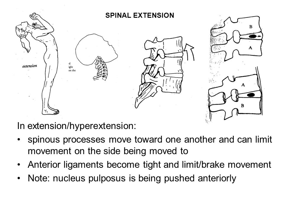 SPINAL EXTENSION In extension/hyperextension: spinous processes move toward one another and can limit movement on the side being moved to Anterior ligaments become tight and limit/brake movement Note: nucleus pulposus is being pushed anteriorly
