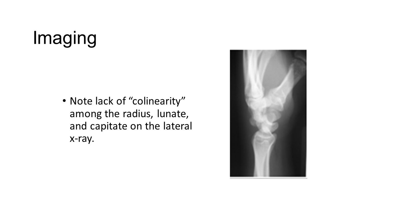 "Note lack of ""colinearity"" among the radius, lunate, and capitate on the lateral x-ray."
