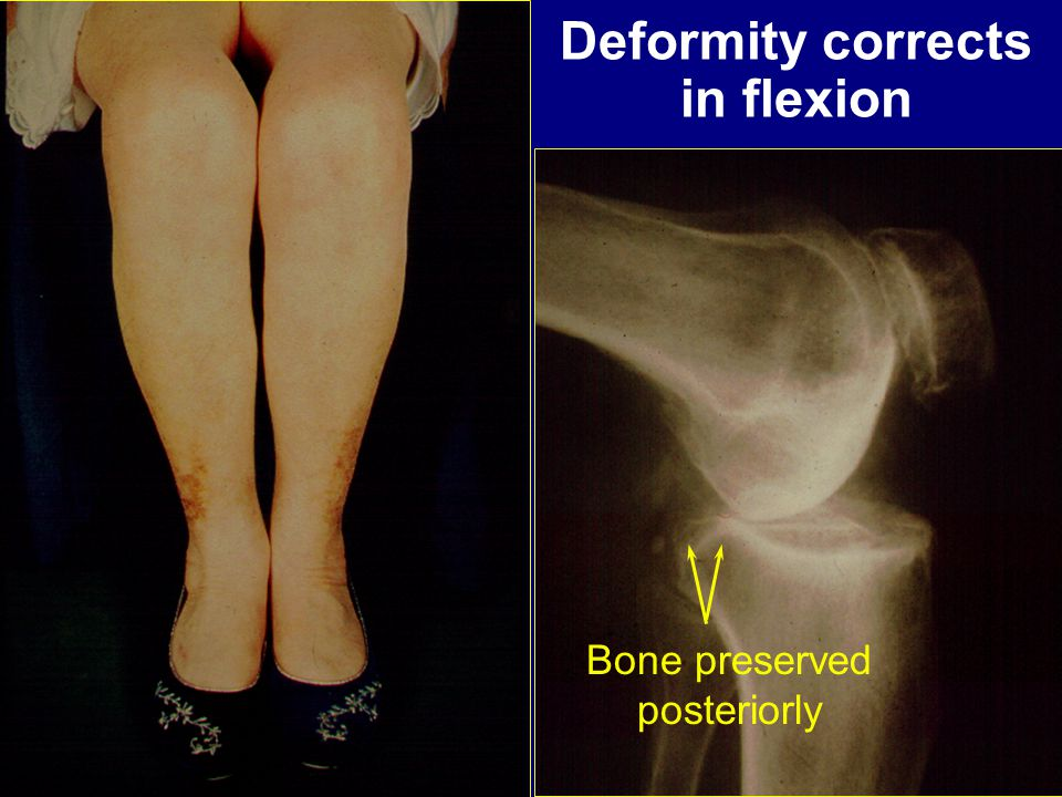 Deformity corrects in flexion Bone preserved posteriorly