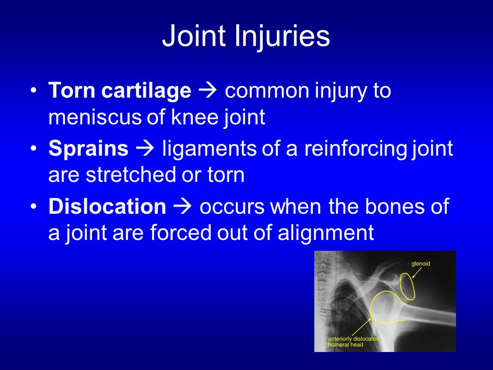 Joint Injuries Torn cartilage  common injury to meniscus of knee joint Sprains  ligaments of a reinforcing joint are stretched or torn Dislocation 