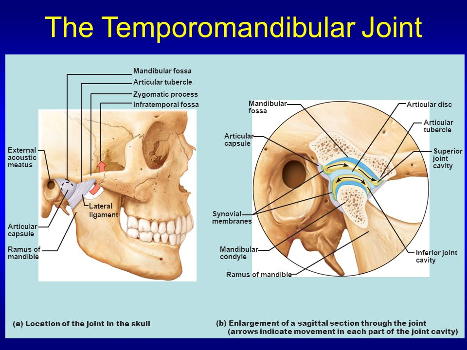 The Temporomandibular Joint Zygomatic process Mandibular fossa Articular tubercle Infratemporal fossa External acoustic meatus Articular capsule Ramus