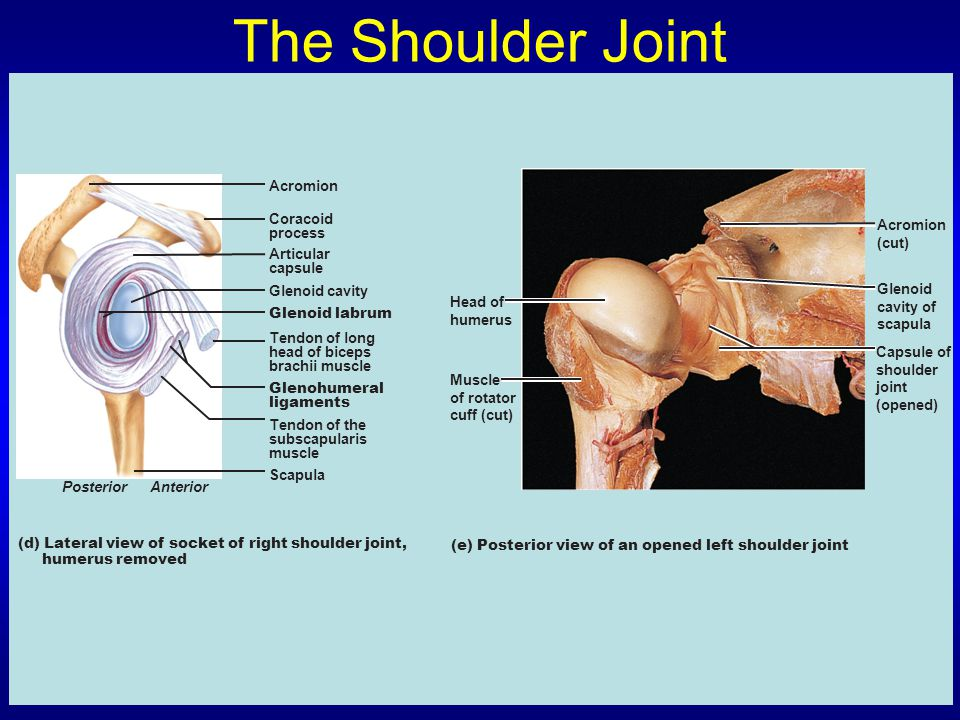 The Shoulder Joint Acromion Coracoid process Articular capsule Glenoid cavity Glenoid labrum Tendon of long head of biceps brachii muscle Glenohumeral ligaments Tendon of the subscapularis muscle Scapula PosteriorAnterior (d) Lateral view of socket of right shoulder joint, humerus removed (e) Posterior view of an opened left shoulder joint Head of humerus Muscle of rotator cuff (cut) Acromion (cut) Glenoid cavity of scapula Capsule of shoulder joint (opened)