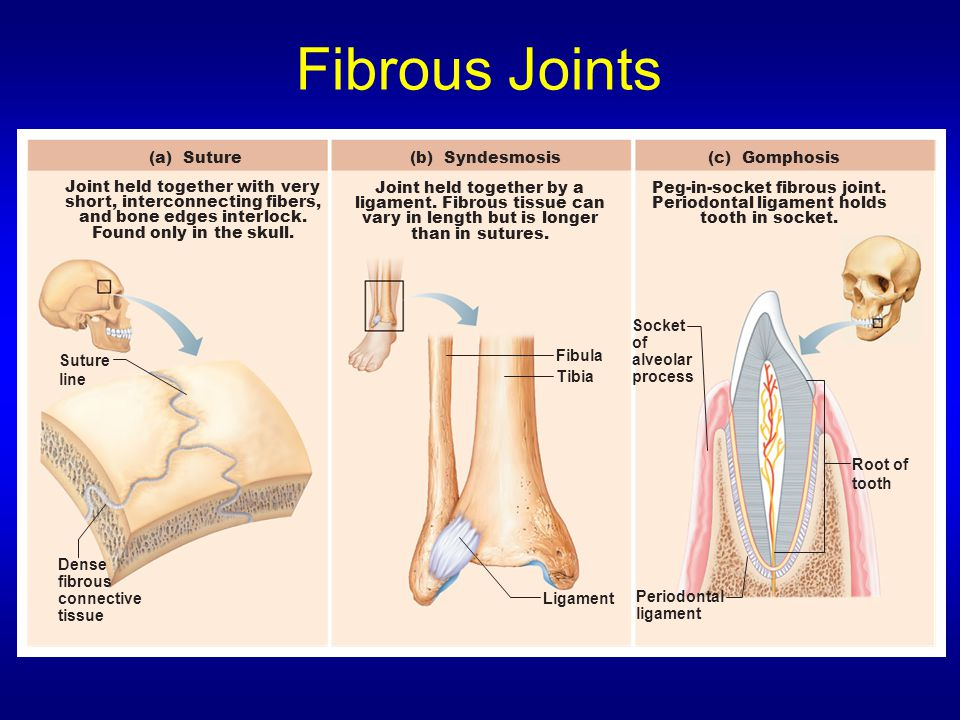 Fibrous Joints Dense fibrous connective tissue Suture line Root of tooth Socket of alveolar process Periodontal ligament Fibula Tibia Ligament (a) Suture Joint held together with very short, interconnecting fibers, and bone edges interlock.