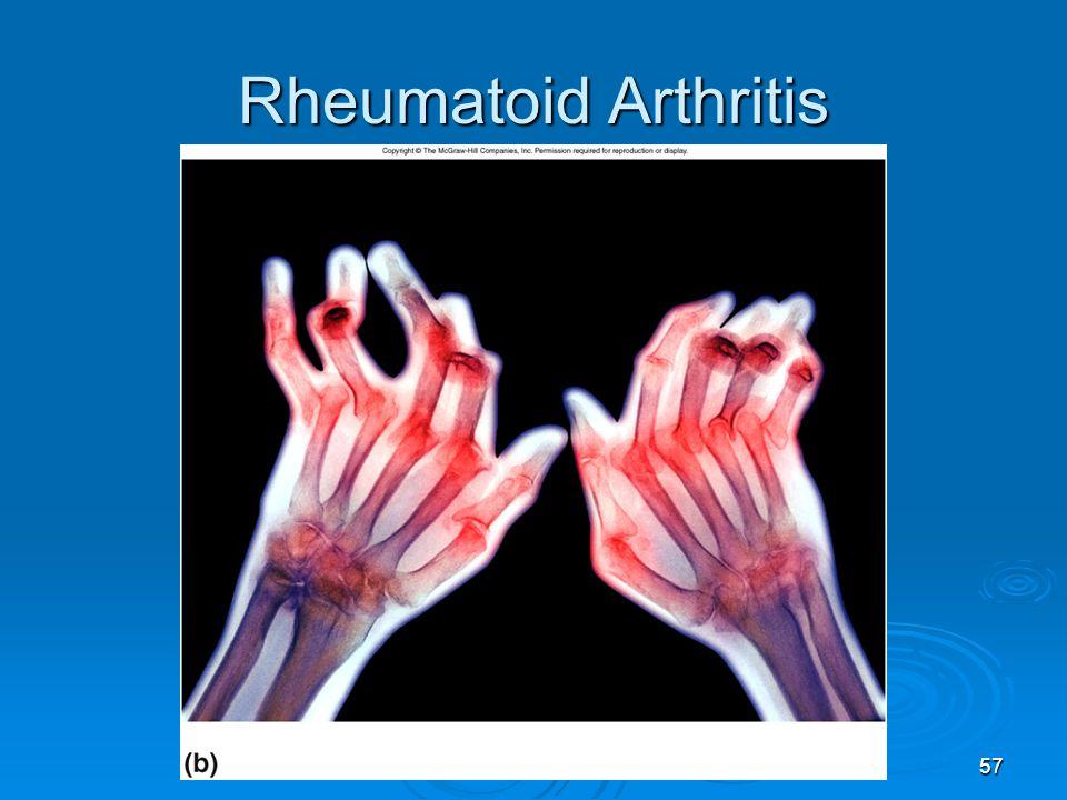 57 Rheumatoid Arthritis