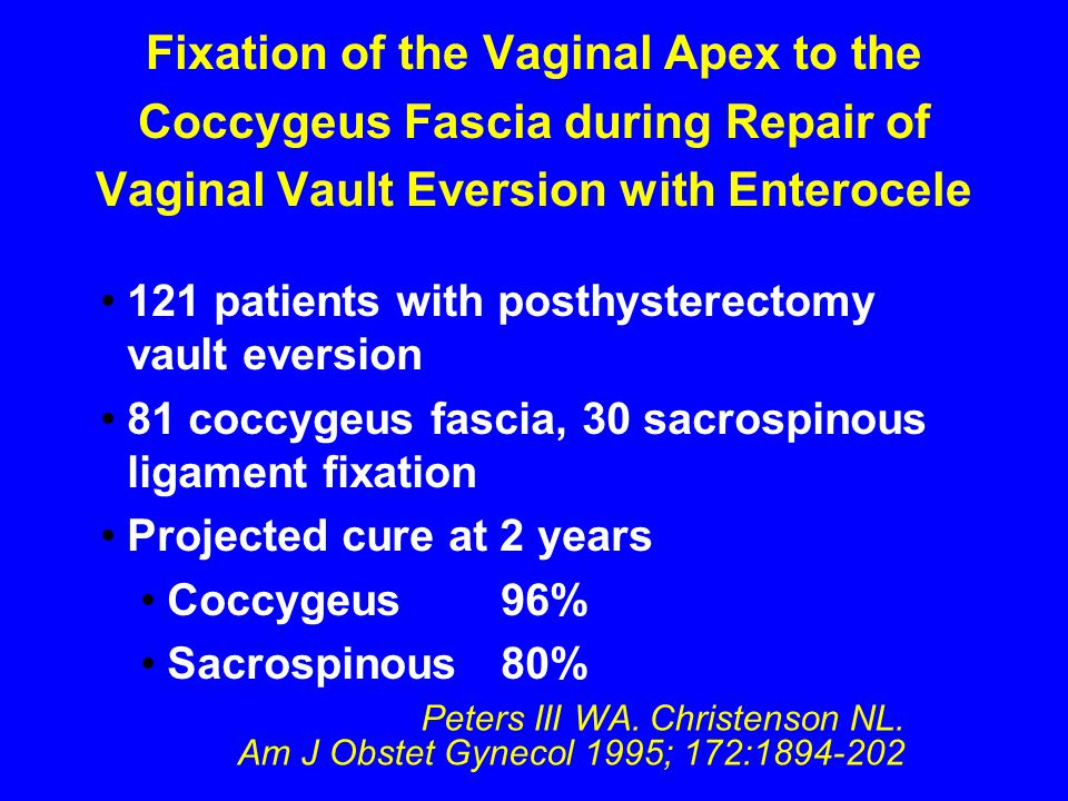 Peters III WA. Christenson NL. Am J Obstet Gynecol 1995; 172:1894-202 Fixation of the Vaginal Apex to the Coccygeus Fascia during Repair of Vaginal Va