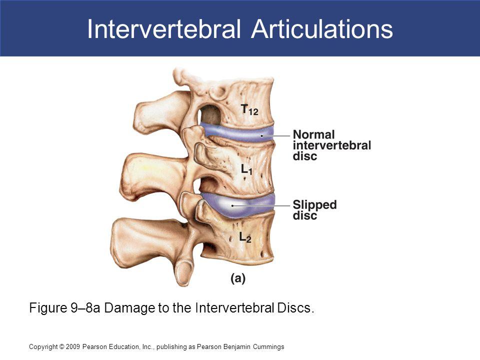 Copyright © 2009 Pearson Education, Inc., publishing as Pearson Benjamin Cummings Intervertebral Articulations Figure 9–8b Damage to the Intervertebral Discs.