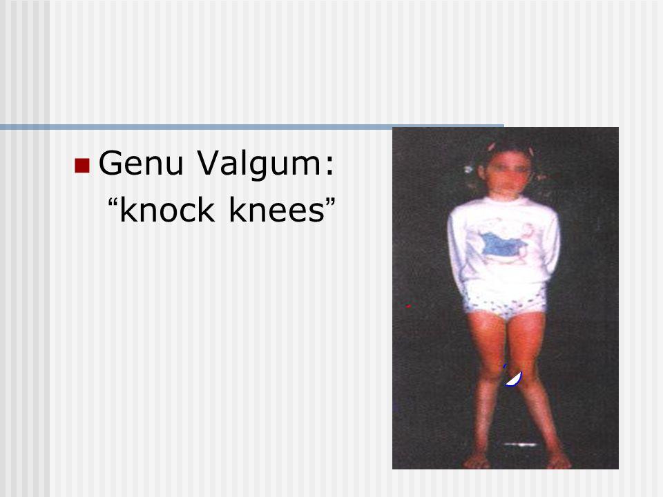 "Genu Valgum: ""knock knees"""