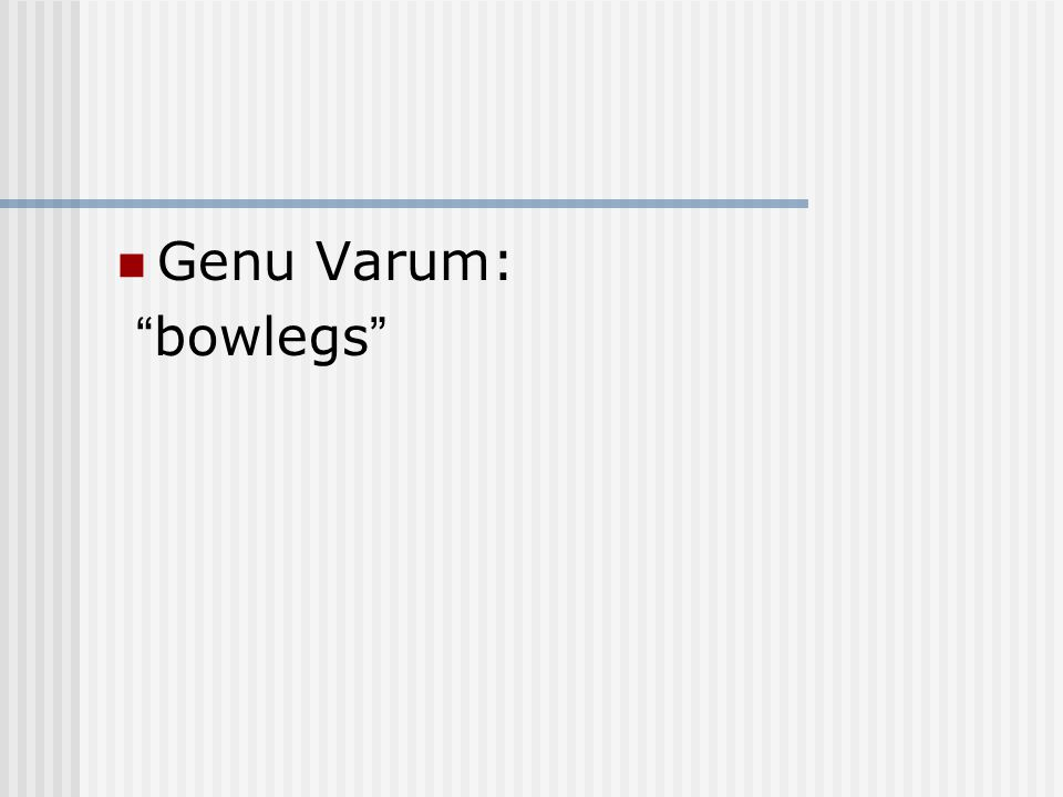 """Genu Varum: """"bowlegs"""""""