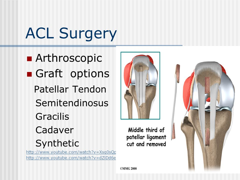 ACL Surgery Arthroscopic Graft options Patellar Tendon Semitendinosus Gracilis Cadaver Synthetic http://www.youtube.com/watch?v=Xsq0sQp6DwU http://www