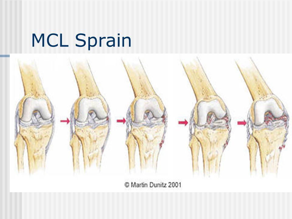 MCL Sprain