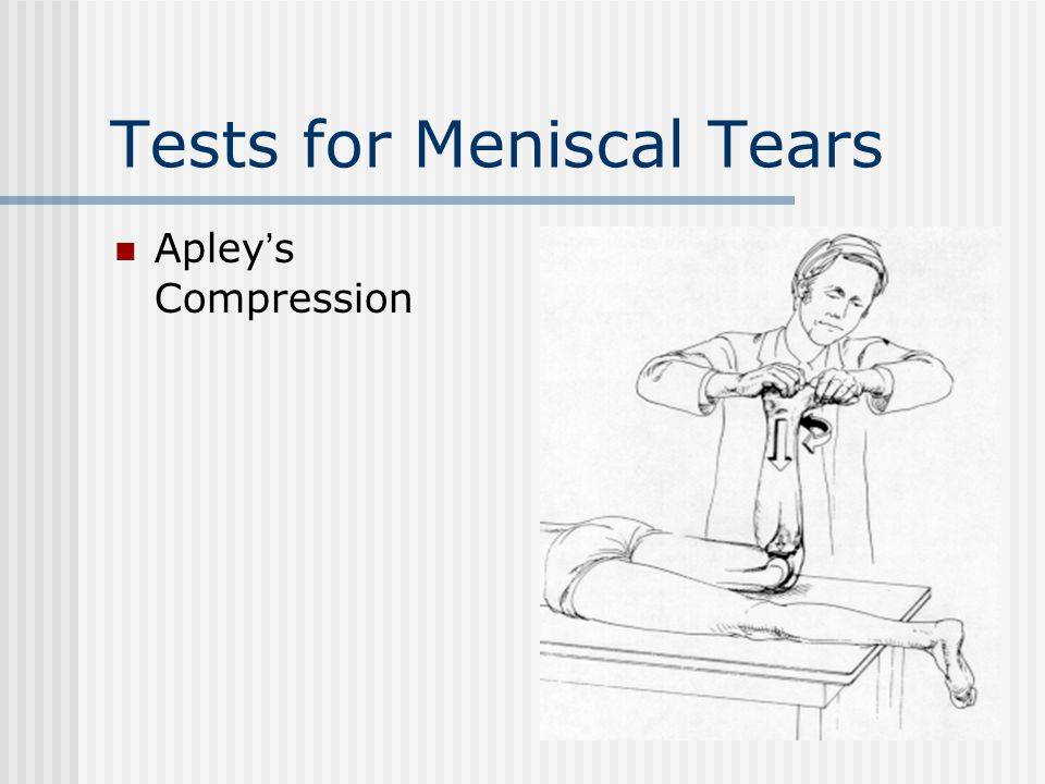 Tests for Meniscal Tears Apley's Compression