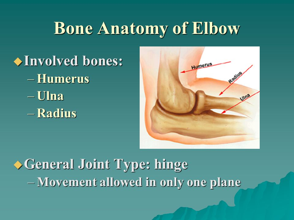 Bone Anatomy of Elbow  Involved bones: –Humerus –Ulna –Radius  General Joint Type: hinge –Movement allowed in only one plane