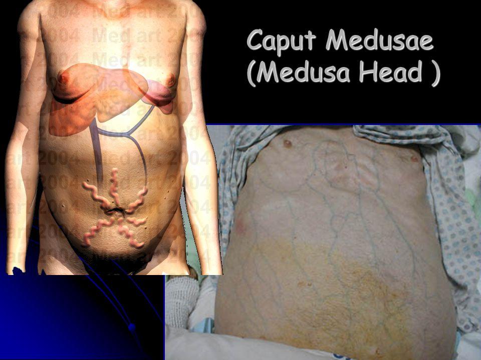 Caput Medusae (Medusa Head )
