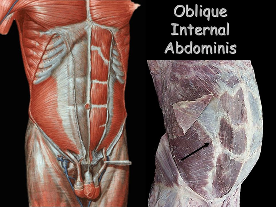 Oblique Internal Abdominis