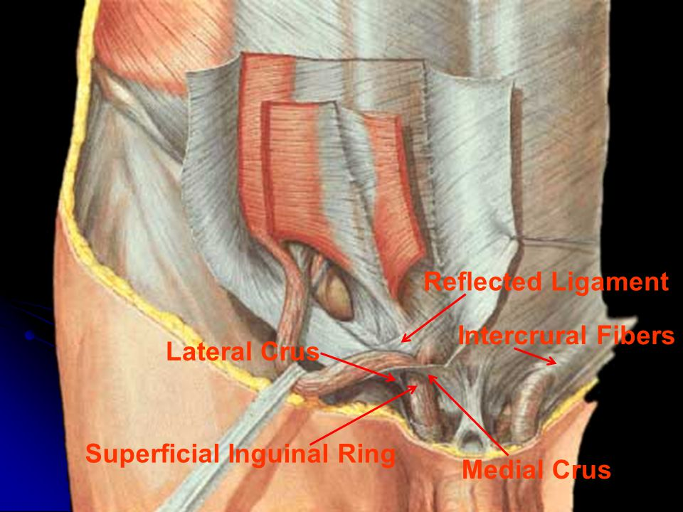 Superficial Inguinal Ring Medial Crus Lateral Crus Intercrural Fibers Reflected Ligament