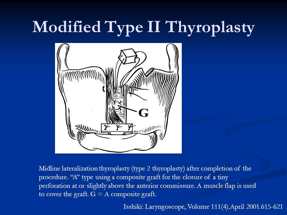 Modified Type II Thyroplasty Isshiki: Laryngoscope, Volume 111(4).April 2001.615-621 Midline lateralization thyroplasty (type 2 thyroplasty) after completion of the procedure.