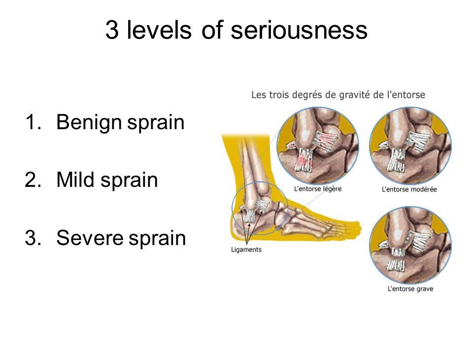 3 levels of seriousness 1.Benign sprain 2.Mild sprain 3.Severe sprain