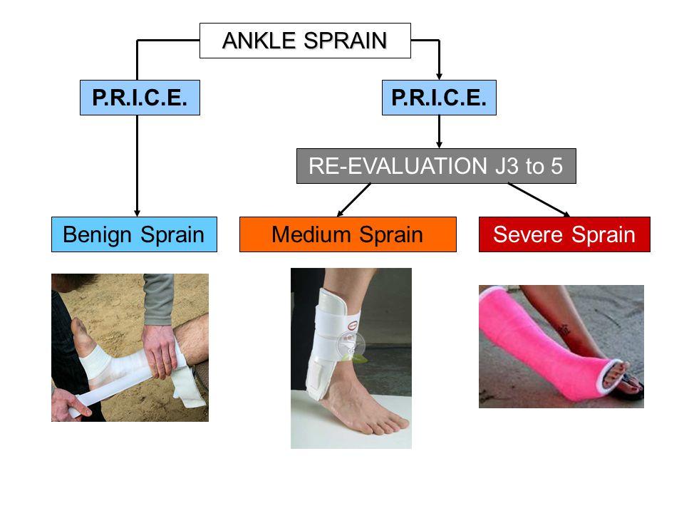 P.R.I.C.E. RE-EVALUATION J3 to 5 Benign SprainMedium SprainSevere Sprain ANKLE SPRAIN P.R.I.C.E.