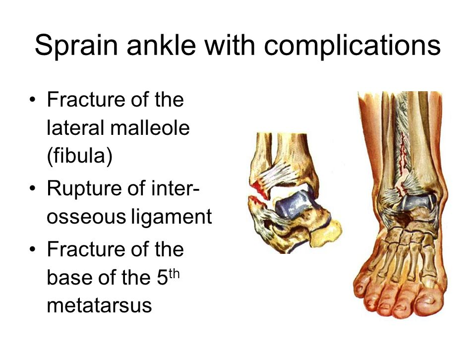 Sprain ankle with complications Fracture of the lateral malleole (fibula) Rupture of inter- osseous ligament Fracture of the base of the 5 th metatarsus