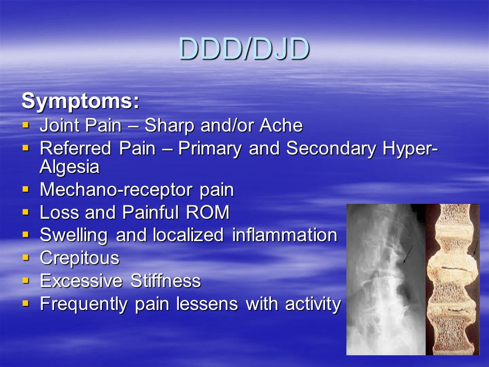 DDD/DJD Symptoms:  Joint Pain – Sharp and/or Ache  Referred Pain – Primary and Secondary Hyper- Algesia  Mechano-receptor pain  Loss and Painful ROM  Swelling and localized inflammation  Crepitous  Excessive Stiffness  Frequently pain lessens with activity