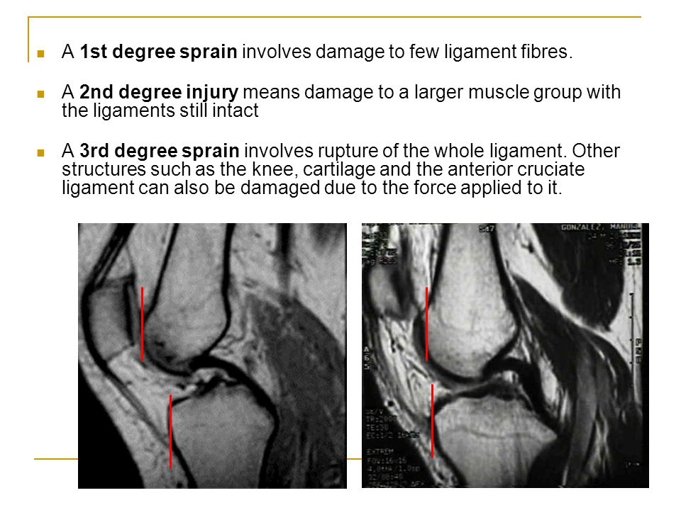 A 1st degree sprain involves damage to few ligament fibres.