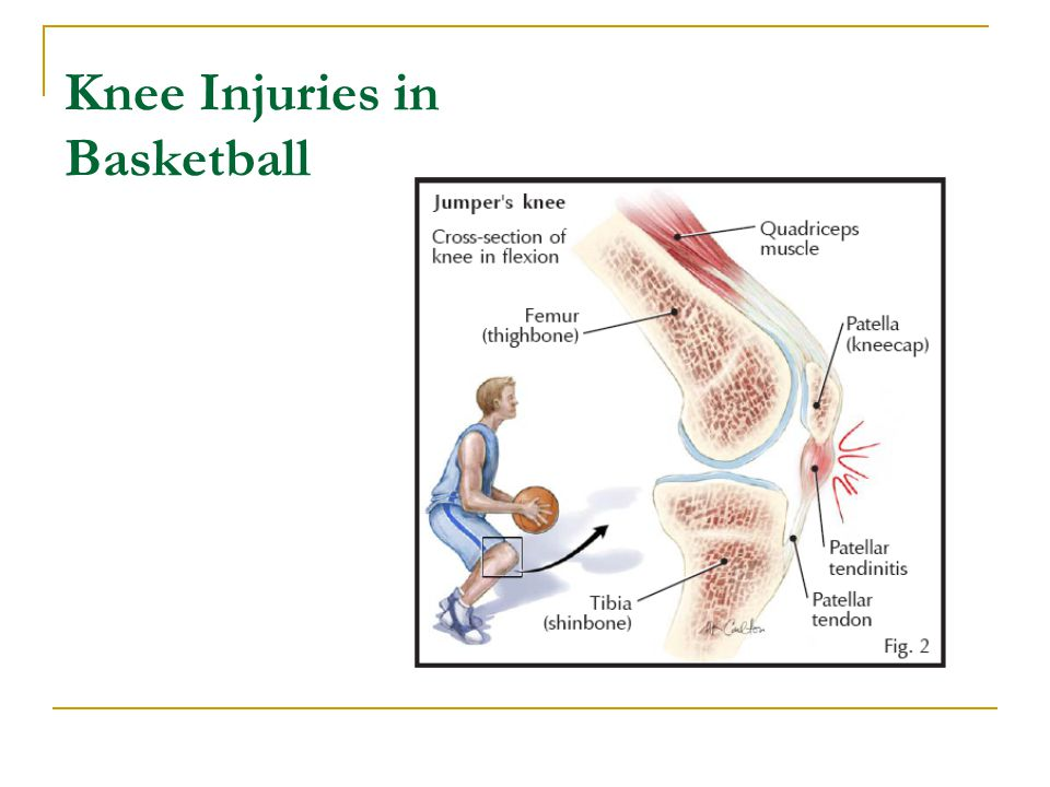 Knee Injuries in Basketball